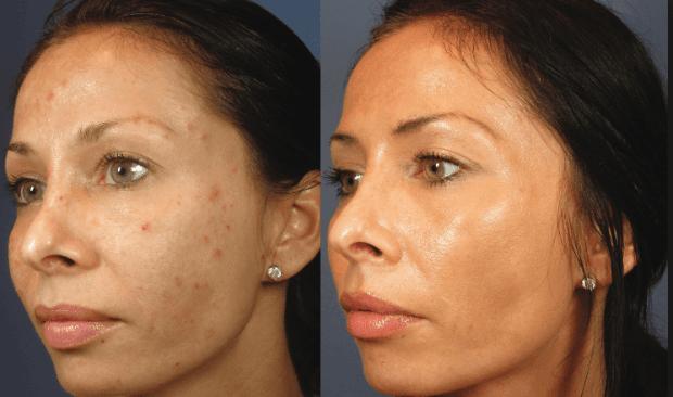 аквашайн биоревитализация отзывы косметологов