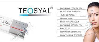 Отзывы о биоревитализации Теосиаль (Teosyal)