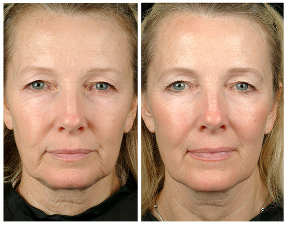 Отзывы о биоревитализации Teosyal косметологов и клиентов