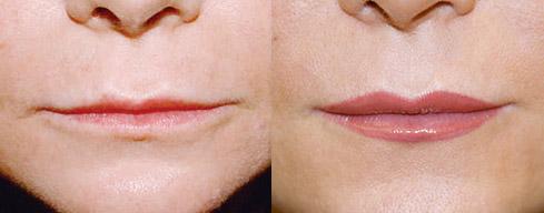 Отзывы о контурной пластике губ