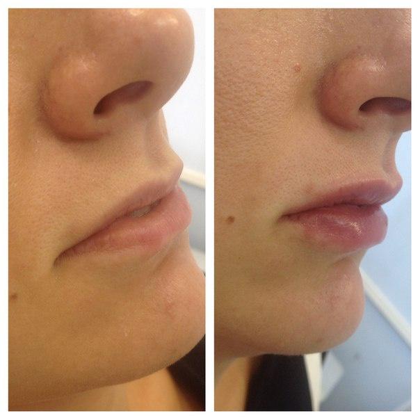 Отзывы о Filorga для увеличения губ
