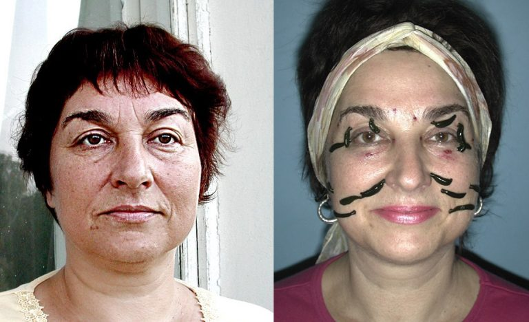 Пиявки в косметологии подтяжка лица отзывы