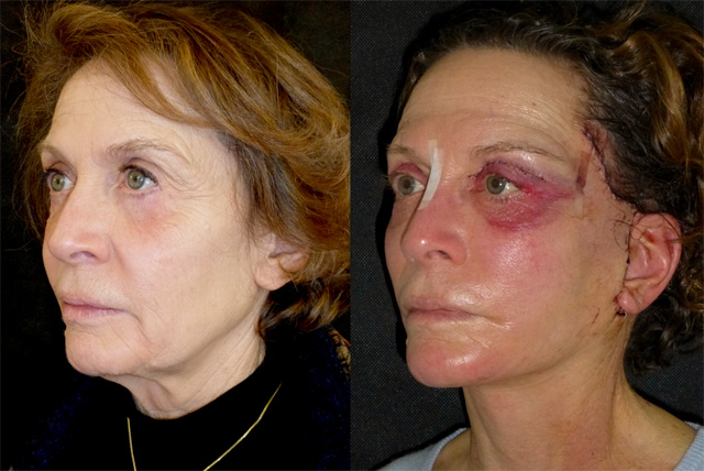 Осложнения после операции и побочные эффекты