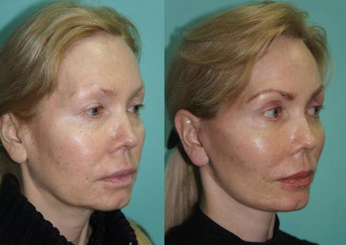 Фото до и после операции и восстановления