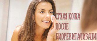 Сухая кожа после биоревитализации – как справиться с побочными эффектами?