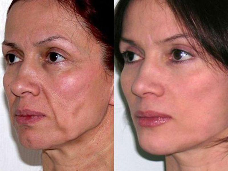 Что такое фейслифтинг: обзор методов подтяжки лица, фото До и После, видео