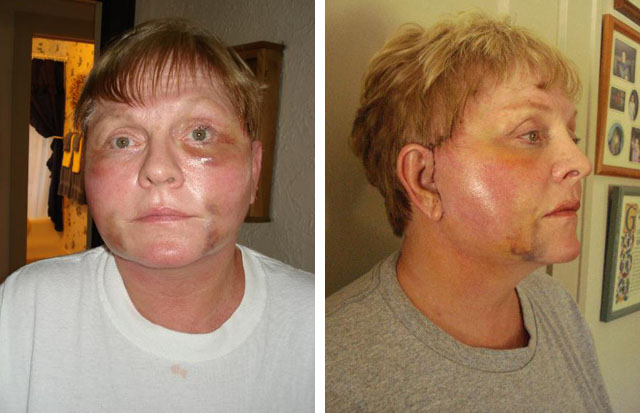 Фото до и после неудачных операций
