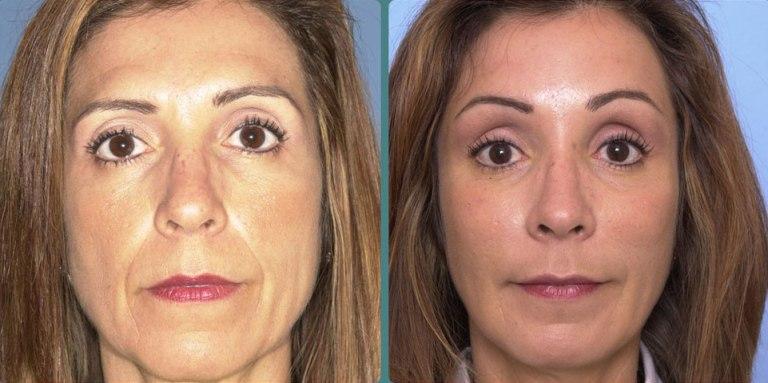Отзывы об ультразвуковой подтяжке лица