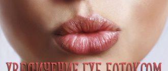 Увеличение губ ботоксом – ответы на популярные вопросы