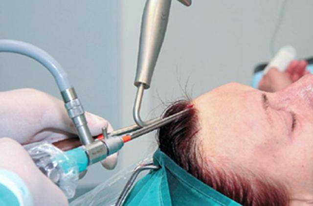 Особенности операции по подтяжке лба и бровей