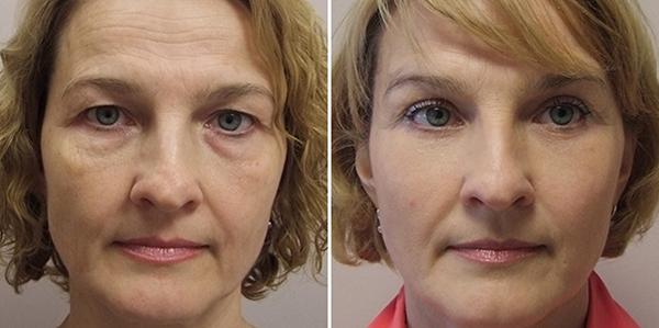 Фото до и после удачных операций