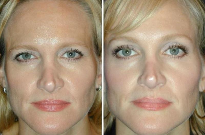 Фото до и после операций