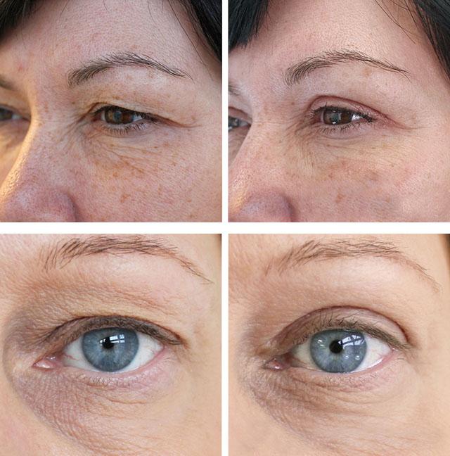 Насколько эффективен лифтинг кожи век?