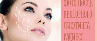 Отзывы на векторный лифтинг лица с фото до и после на препарате Радиесс