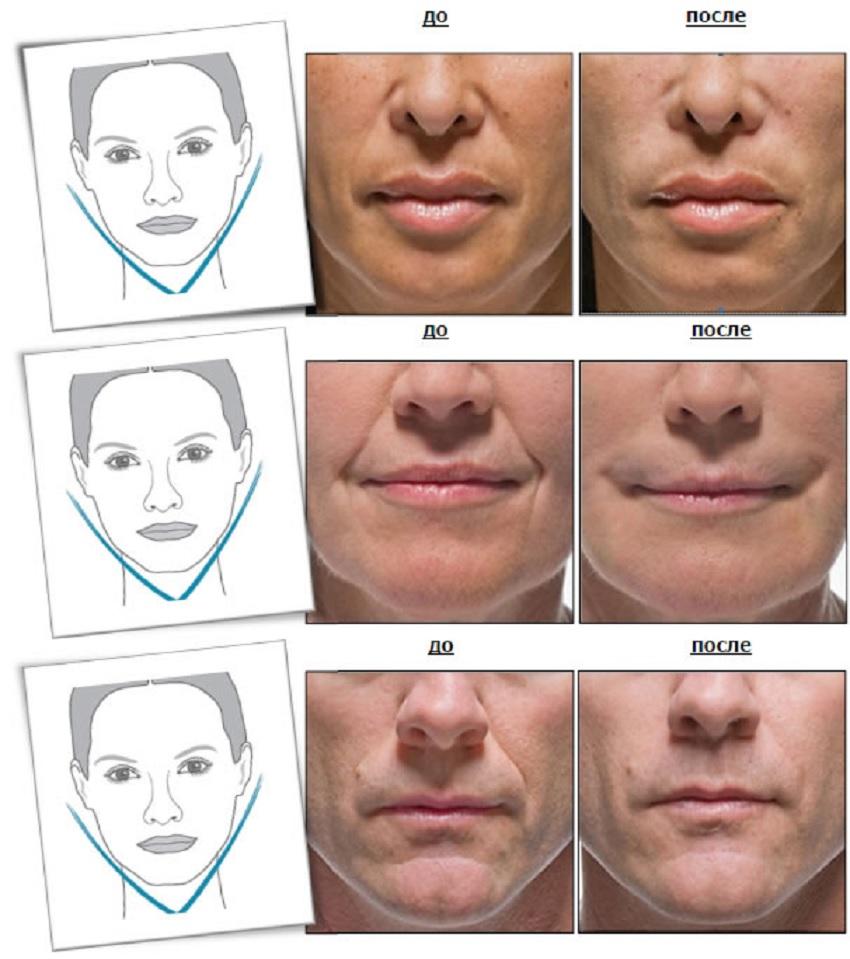 Фото до и после проведения процедур с помощью Radiesse
