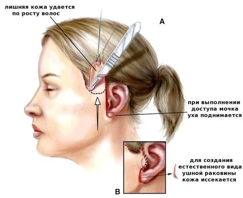 эндоскопическая латеральная подтяжка.