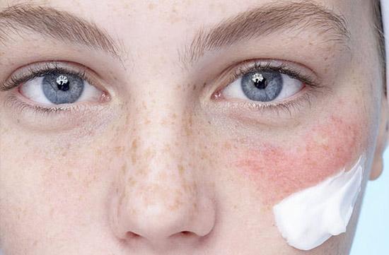 Как узнать, что коже не хватает лецитина?