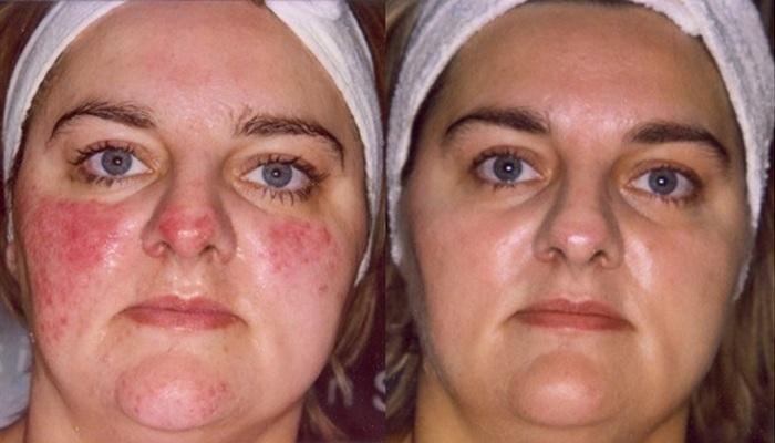 Фото до и после применения кремов от дерматита