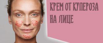 Крем от купероза на лице – можно ли найти хорошее антикуперозное средство в аптеке?