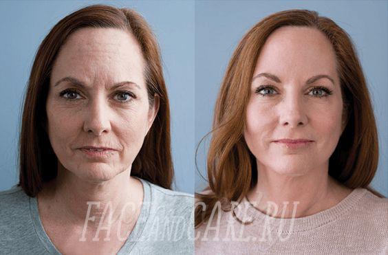 Реальные отзывы из зарубежных клиник об омоложении кожи Соматропином