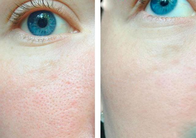 Отзывы на ночной крем для лица «3D гиалурованный филлер» от Либредерм