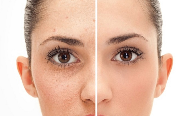 Фото аллергии на лице