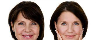 крем для лица с пептидами против морщин