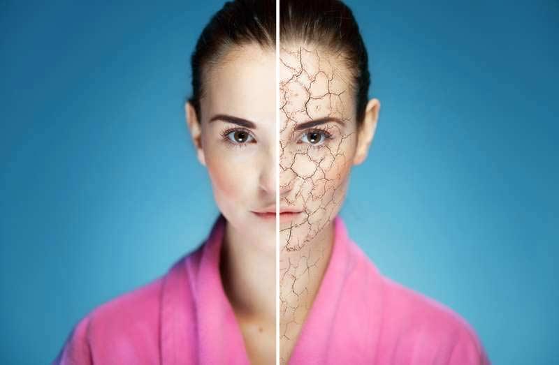 Как ухаживать за обезвоженной кожей?