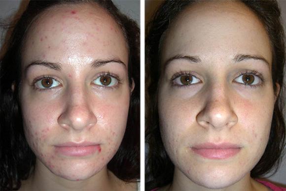 Фото до и после атравматической чистки лица
