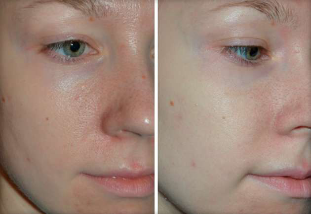 Фото до и после безинъекционной мезотерапии