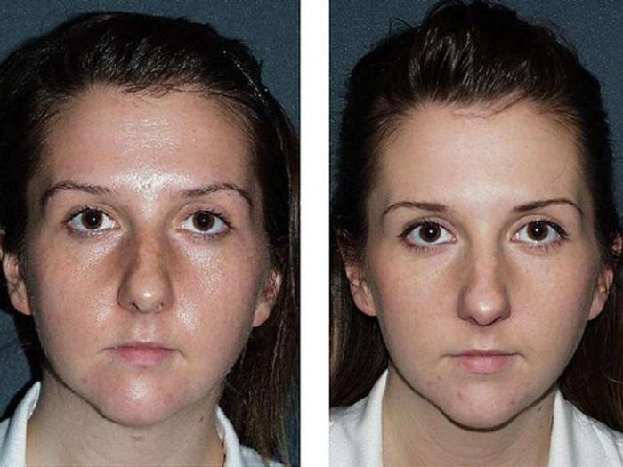Фото до и после проведения гликолевого пилинга