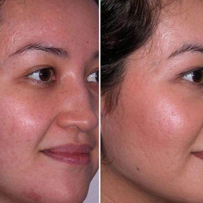 Фото до и после проведения чистки