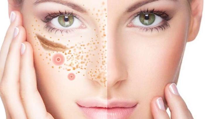 Как ухаживать за кожей после процедур?