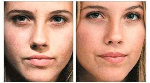Отзывы женщин и косметологов