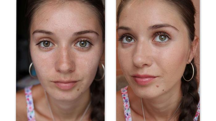 Фото до и после комбинированной чистки лица