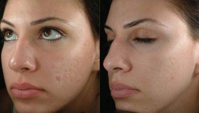 Фото до и после проведения лазерной чистки лица