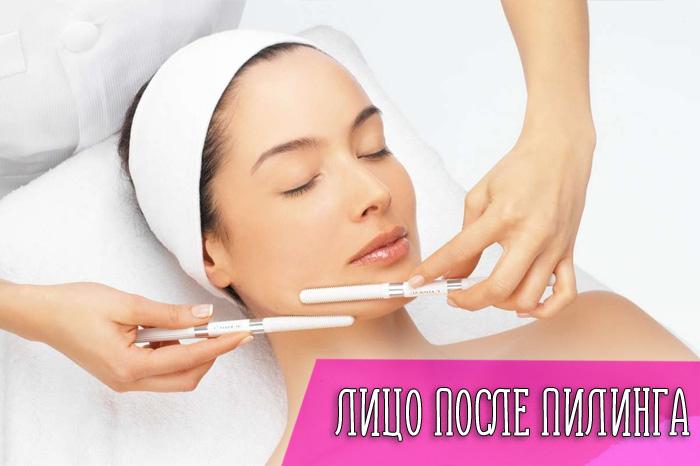 Как пилинг действует на кожу лица?