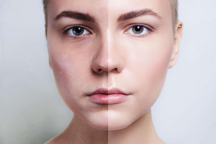 Как восстановить кожу после пилинга?