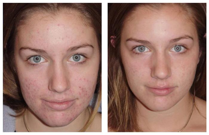 Фото до и после механической чистки лица