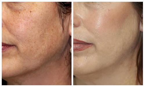 Фото до и после мезотерапии лица