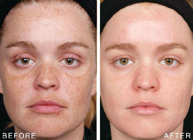 Фото до и после процедур пилинга