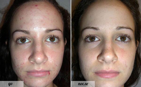 Фото до и после проведения процедур