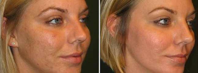 Фото до и после проведения процедур пилинга Роз де Мер
