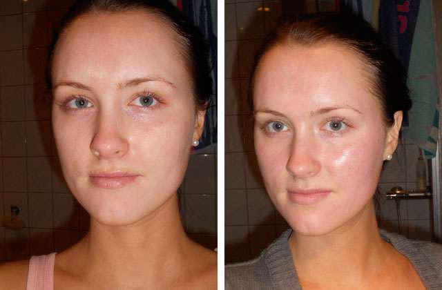 Фото до и после пилинга трихлоруксусной кислотой