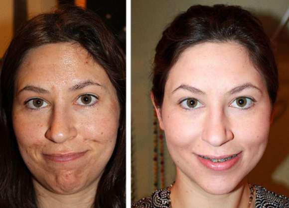 Фото до и после процедуры пилинга