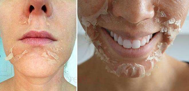 Как долго будет шелушиться кожа