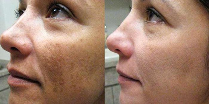 Фотографии до и после проведения срединного пилинга лица