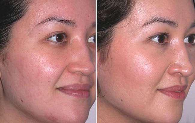 Фото до и после ультразвуковой чистки