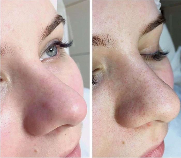 Фото до и после вакуумной чистки лица