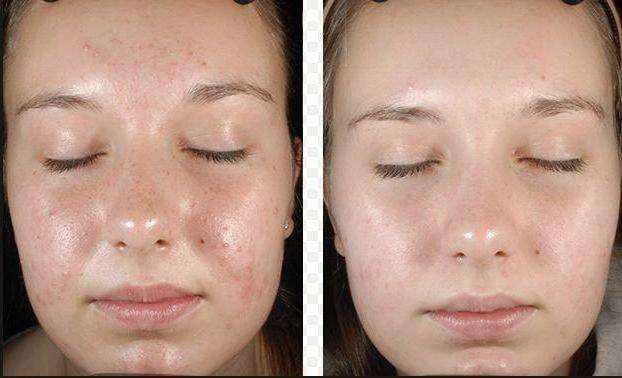Фото до и после проведения процедур жёлтого пилинга
